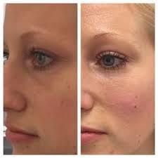 Före och efter behandling med en ml Redensity II