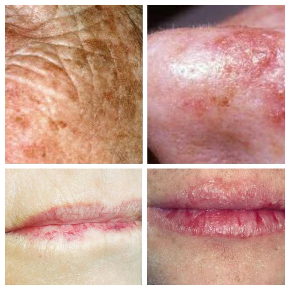 Från vä solskadad äldre hud. Näsa med cellförändringar. Läppar med pigmentskador.